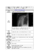 SOA(Rotater Cuff (Supraspinatus tear injury))